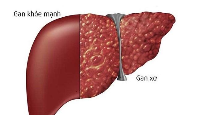 bệnh gan nhiễm mỡ, gan nhiễm mỡ có nguy hiểm không, xơ gan, ung thư gan
